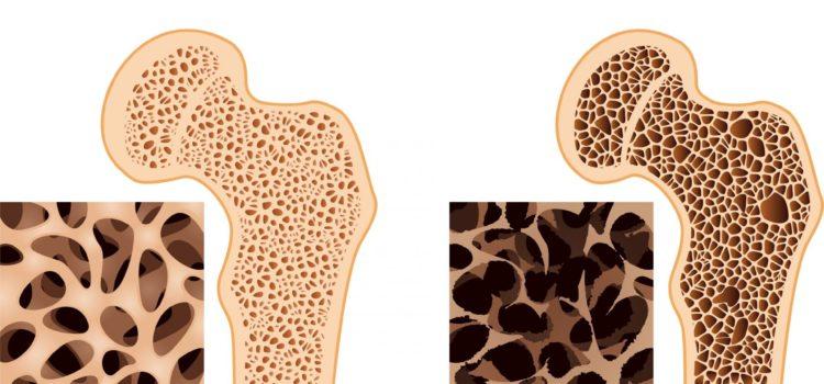 Остеопороз – «тихая эпидемия»
