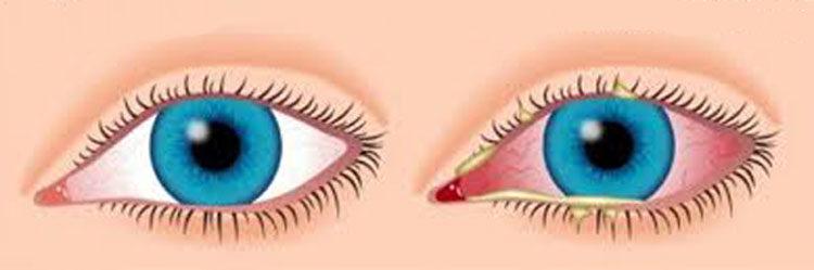 Алергічні захворювання очей. Як проявляються алергічні захворювання очей