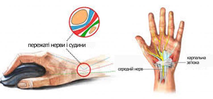 Синдром карпального каналу (СКК)
