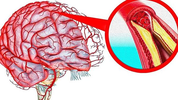 Атеросклероз судин головного мозку: профілактика і лікування