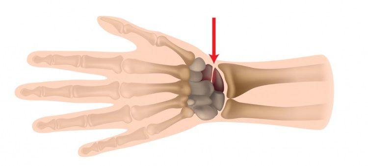 Перелом човноподібної кістки кисті: лікування і терміни відновлення руки